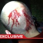 a George Zimmerman head